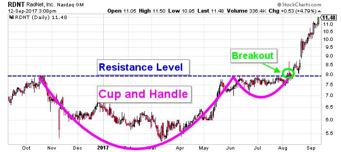 RadNet stock chart